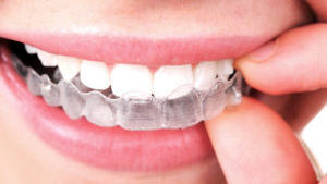 Dental Patient Putting in Her Invisalign Trays